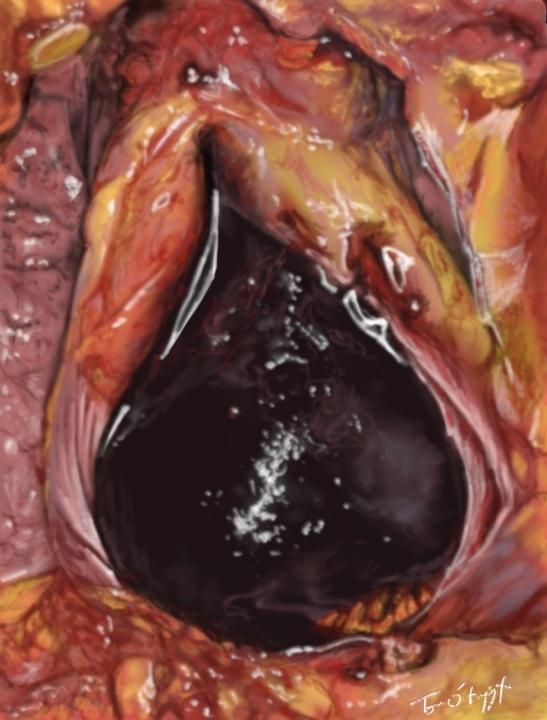tamponnade hemopericarde
