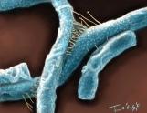 anthrax bacillus anthracis