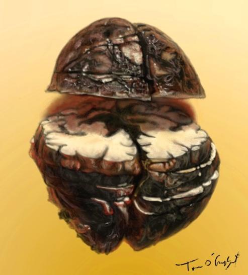 anthrax meninge