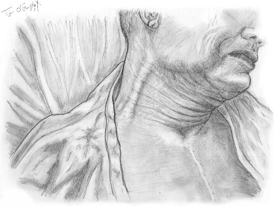 insuffisance cardiaque turgescence jugulaire