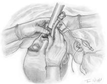 intubation orotracheale laryngoscopie sonde