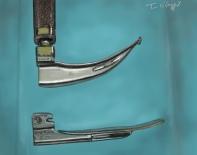 intubation tracheale laryngoscope Miller Macintosh