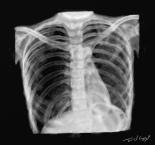 pneumothorax radiographie