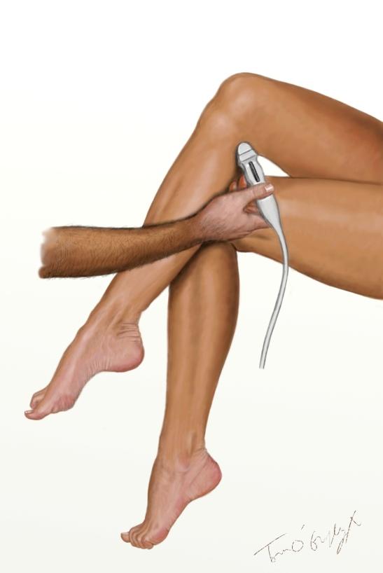 phlébite doppler jambes