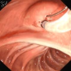 spinctérotomie endoscopique CPRE