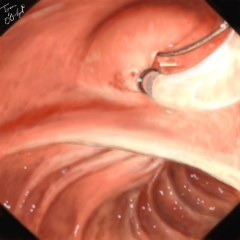 spinctérotomie endoscopique CPRE