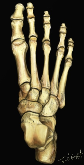 squelette pied fracture metatarsien