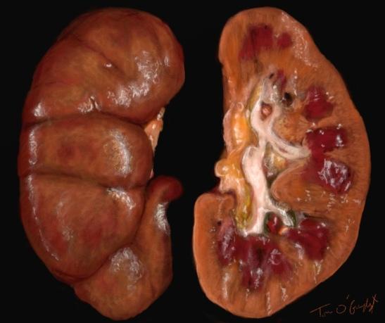 insuffisance renale aigue necrose tubulaire