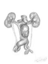 anevrysme aorte abdominale