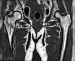 fracture col femur IRM