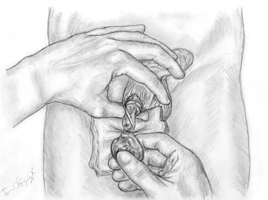 torsion cordon spermatique testicule