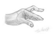 deformation doigt boutonniere traumatique