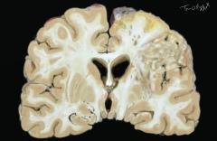 accident vasculaire cerebral AVC ischémique
