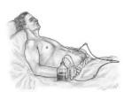 ponction-lavage hemoperitoine