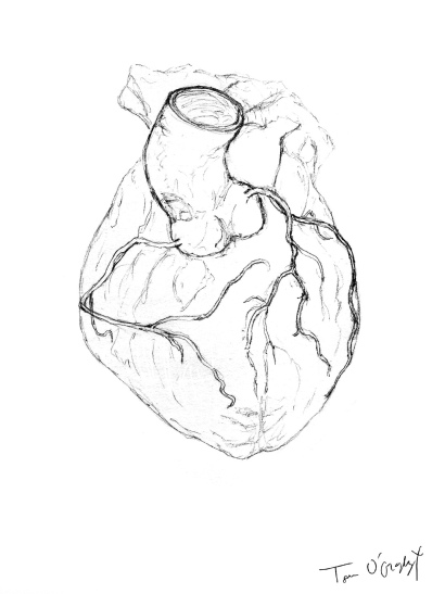 arteres coronaires coeur