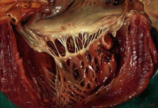 rupture cardiaque muscle papillaire pilier