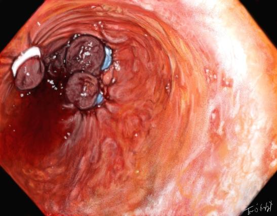 Ligature de varices oesophagiennes en endoscopie