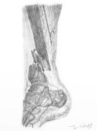 lésions vasculaire de l'artère tibiale postérieure sur une fracture diaphysaire tibiale déplacée, artériographie en négatif