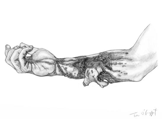 morsure avant bras lambeau
