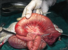 occlusion intestin grele obstruction ascaris
