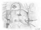 port-a-cath chambre implantable pose
