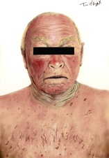 syndrome cave superieur oedeme pelerine