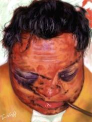 fracture face oedeme Lefort