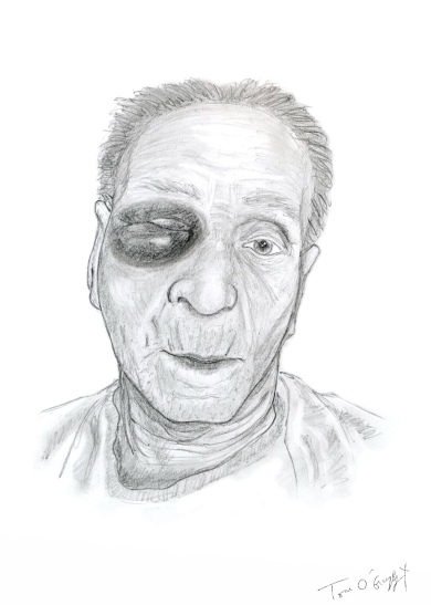 fracture massif facial orbite