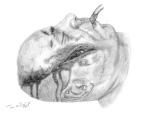 laceration faciale profonde