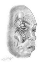 laceration faciale superficielle