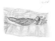morsure serpent avant bras fasciotomie