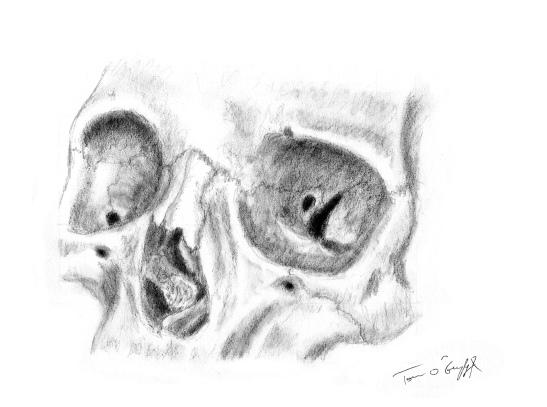 orbite osseuse