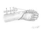 plaie complexe main