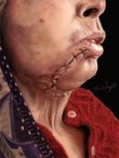 plaie face suture temporaire