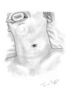 plaie par balle cervicale profonde