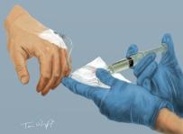 sedation intraveineuse